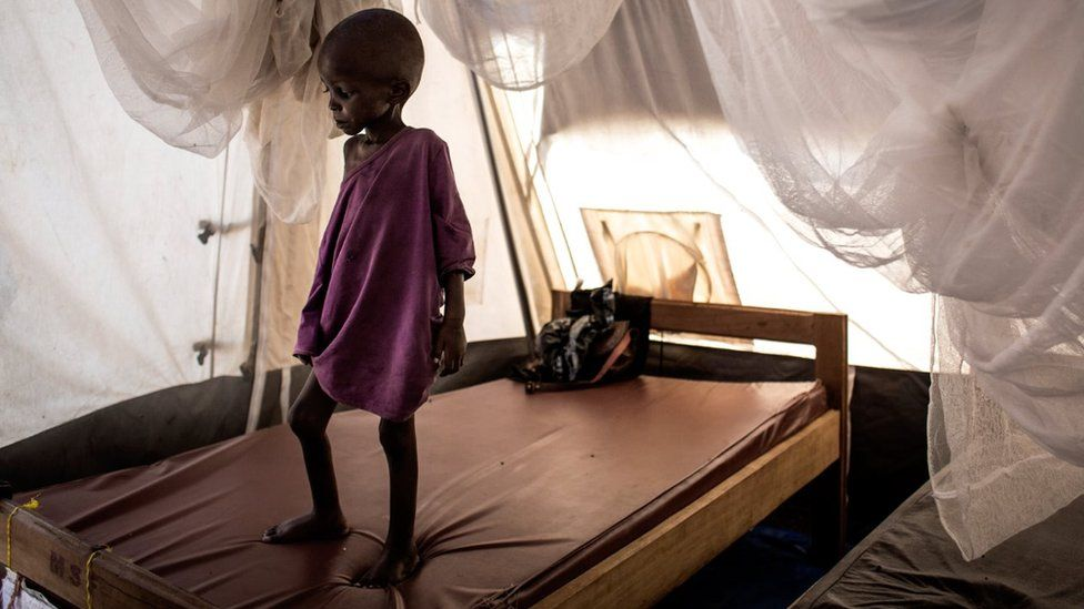 A severely malnourished child stands on his bed inside a feeding and rehabilitation centre on October 23, 2017 in Tshikapa