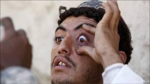 Афганец показывает сетчатку своего глаза