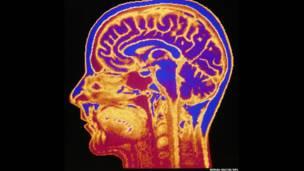 मानव का दिमाग.