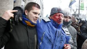 Раненый в ходе столкновений
