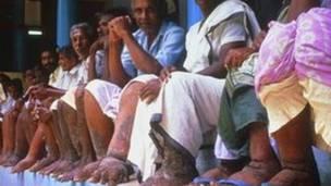 फ़ाइलेरिया से प्रभावित लोग