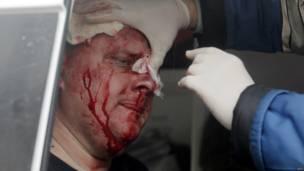 Un oficial de policía ucraniano recibe atención médica tras haber sido golpeado por la turba pro-rusa que arremetió contra la estación policial en Horlivka.
