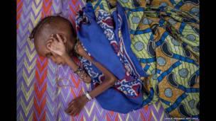 सेंट्रल अफ़्रीकन का शरणार्थी, एक कुपोषित बच्चा
