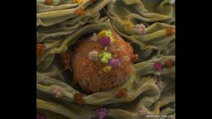 A human fibroblast. Dominic Collis