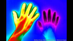 Raynaud hastalığı-Matthew Clavey, Thermal Vision Research