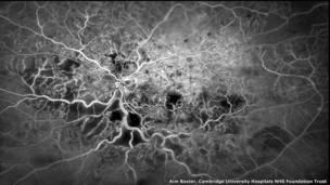 Кровеносные сосуды глаза, Ким Бакстер, Кембриджский университетский госпиталь
