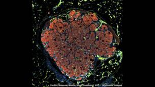 الصورة لتشيلسي فورتين، وكيلي ستيفنز، وسانغيتا بهاتيا بقسم هندسة أنسجة الكبد البشري، بمعهد كوتش.