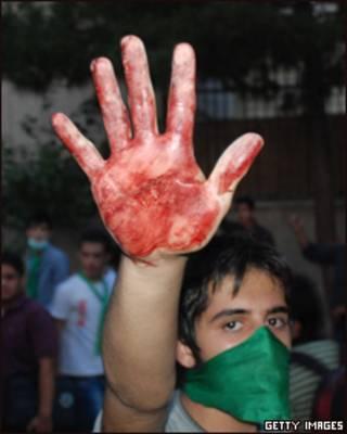 Manifestante mostra mão manchada de sangue durante protesto em Teerã (Getty Images)