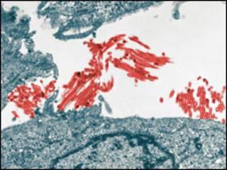 Vírus H1N1 em vermelho. Foto: Cortesia Yoshihiro Kawaoka