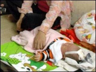Bé Nhật Minh tại bệnh viện