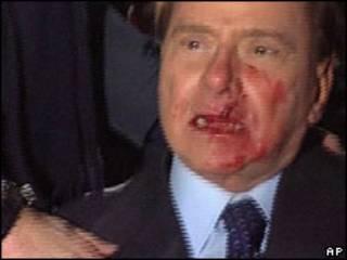 Silvio Berlusconi attack