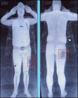 Imagem do scanner de corpo