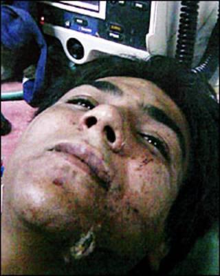 अस्पताल में अजमल कसाब (फ़ाइल फ़ोटो)