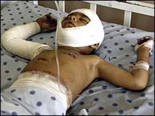 کودک زخمی افغان (عکس از آرشیو)