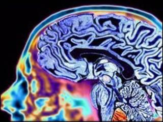 दिमाग़