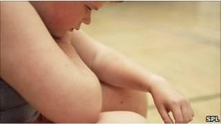 Anak yang obese
