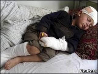 کودک زخمی افغان
