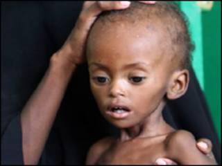 Matsalar yinwa a Somalia