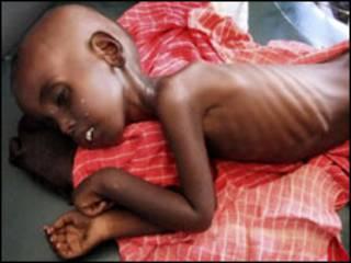 Wani yaro mai fama da tamowa a Mogadishu