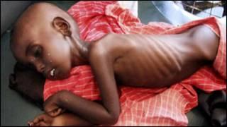 Umwana wazahajwe  n'inzara muri Somaliya