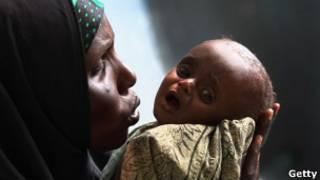 Mãe segura seu filho de 7 meses, que sofre de desnutrição, em hospital de Mogadíscio. Foto: Getty Images