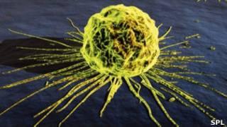 Célula cancerígena. SPL