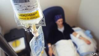 Paciente sendo submetida a quimioterapia nos EUA, em foto de arquivo (SPL)