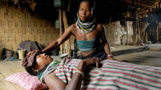 mgonjwa wa malaria