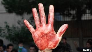 دست خونین