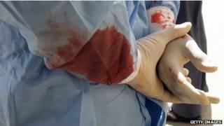 Médico en Deraa