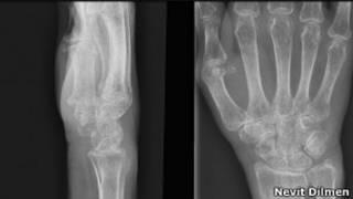 Raio-x de vítima de osteoporose (Wikimedia Commons)