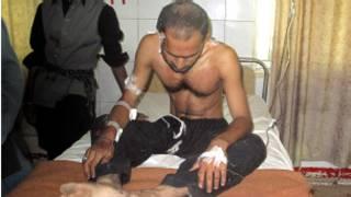 Пострадавший при взрыве в Пакистане