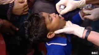 Niño vacunado en pakistán