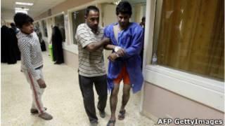 Un blessé après les attentats à la voiture piégée qui ont fait 28 morts à Bagdad.