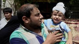 طفلة مصابة جراء تفجير في بغداد