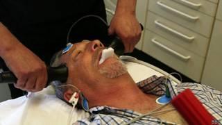 Hombre en sesión de terapia electroconvulsiva