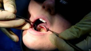 बच्चों के दांतों में सड़न