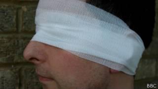 Homem cego | Crédito: BBC