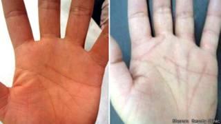 Producto de la operación de las manos en la clínica de Shonan