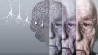 डिमेंशिया, मनोभ्रंश