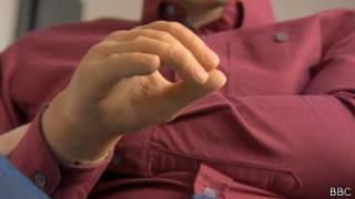 Biyonik protez kol