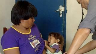 Criança xavante desnutrida (BBC Brasil)