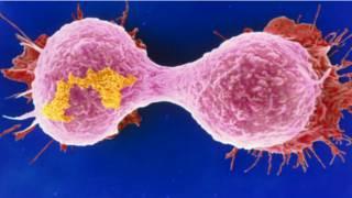 صورة لخلايا سرطان الثدي