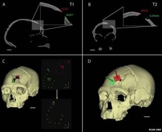 череп неандертальца