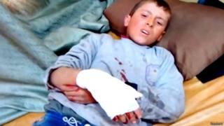 घायल बच्चा