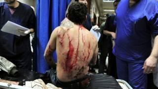 Раненый сириец
