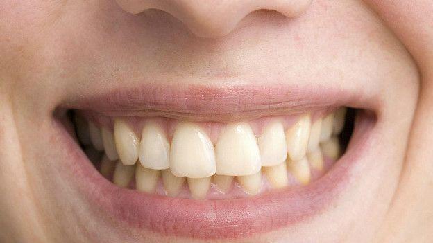 Дантисты говорят, что природные пигменты чая с большей вероятностью прилипнут к эмали зубам, чем красящие вещества кофе