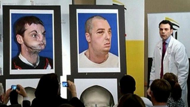 До и после пересадки лица