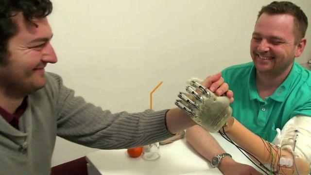 Dennis Aabo con su mano bónica