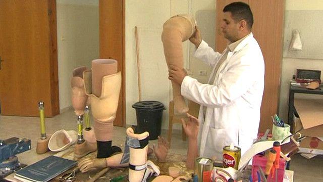 Técnico probando una prótesis